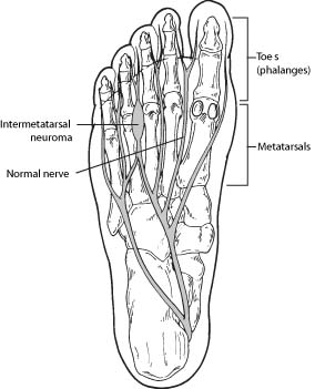 F-66-and-F-135-Neuroma-2009