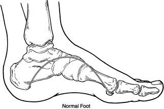 Flatfoot01